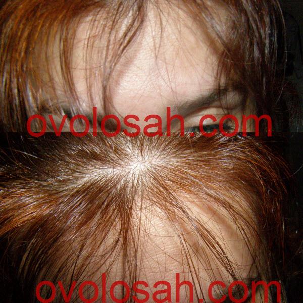 Как остановить выпадение волос у женщин и увеличить их густоту, отзыв реального человека с фото результата